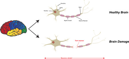 brain damage: Brain Damage Illustration