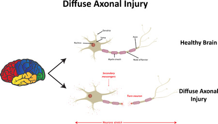 diffuse: Diffuse Axonal Injury