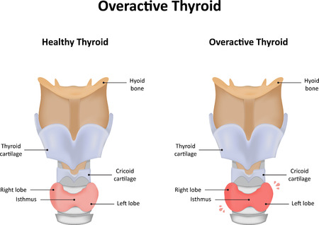 gland: Overactive Thyroid Gland Illustration