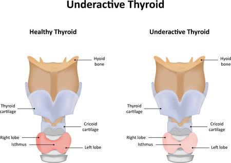 thyroid: Underactive Thyroid Gland Illustration