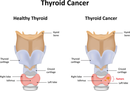 thyroid: Thyroid Cancer Labeled Diagram Illustration