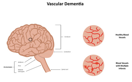 midbrain: Vascular Dementia Poster