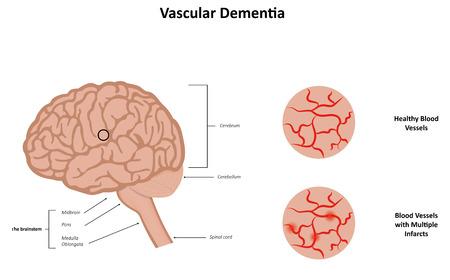 midbrain: Vascular Dementia