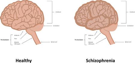 schizophrenic: Schizophrenia Illustration