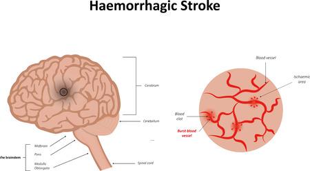 apoptosis: Accidente cerebrovascular hemorr�gico Vectores