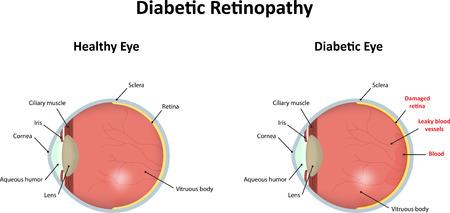 sclera: Diabetic Retinopathy
