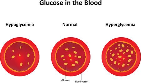 hyperglycemia: Blood Glucose Stock Photo