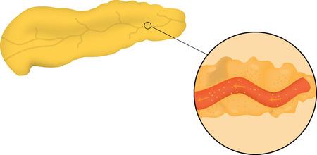 pancreatic: Pancreas and Acinus