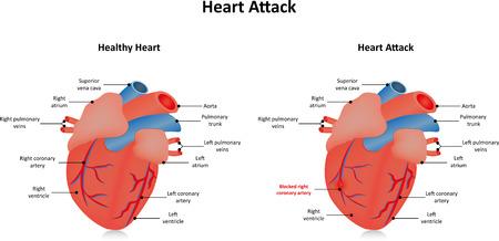 aorta: Heart Attack Stock Photo