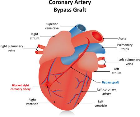 angina: Coronary Artery Bypass Graft CABG