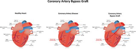 Coronary Artery Bypass Graft CABG Vektorové ilustrace