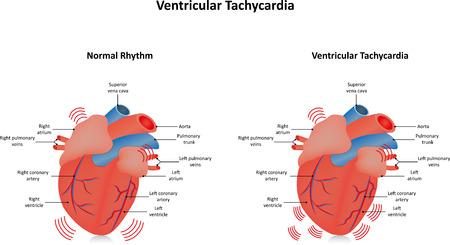 tachycardia: Taquicardia ventricular V-tac�metro Vectores