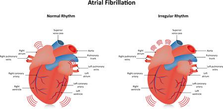 atrial: Atrial Fibrillation