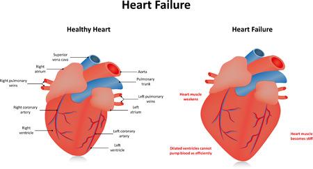 enfermedades del corazon: Insuficiencia Cardíaca Vectores