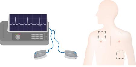 defibrillator: Defibrillator Positions