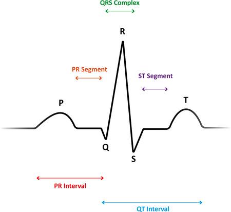 ecg: ECG Wave