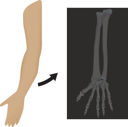 radius ulna: Radiograph X Ray of Wrist