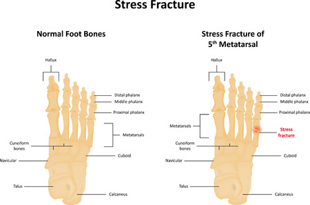 overuse: Stress Fracture