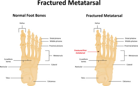 foot bones: Fractured Metatarsal Illustration