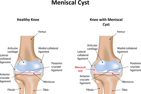 Meniscal Cyst Illustration
