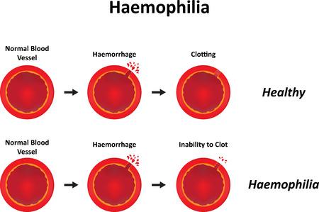 haemorrhage: Haemophilia