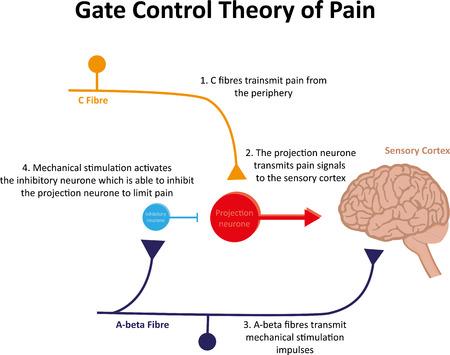 Teoría de Control de Puerta del Dolor Explicación Foto de archivo - 43278790