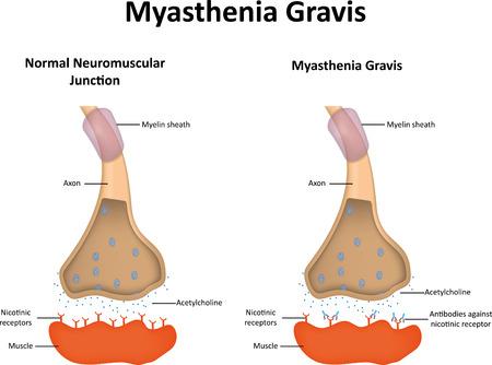 acetylcholine: Myasthenia Gravis Illustration Illustration