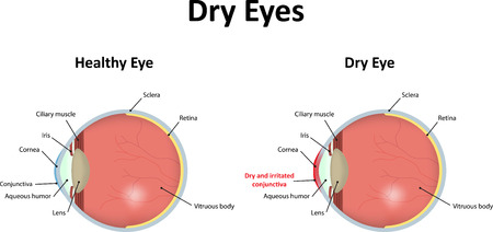 Dry Eyes Stock Vector - 43423599