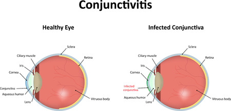 redness: Conjunctivitis Illustration