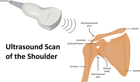 ultrasound scan: Ultrasound Scan of Shoulder Stock Photo