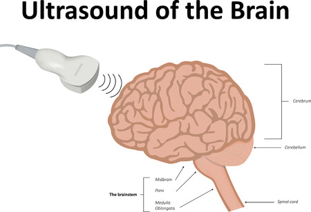 cranial: Ultrasound Scan of the Brain Illustration
