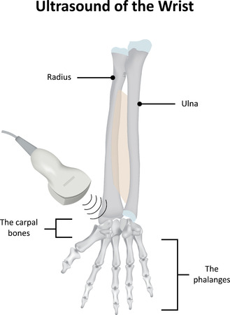 fracture arm: Ultrasound Scan of the Wrist Illustration