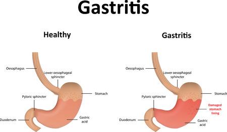 pylori: Gastritis Stock Photo