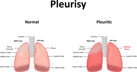 chest pain: Pleurisy Illustration