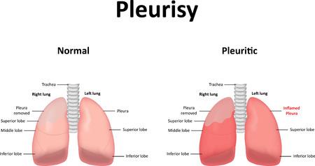 pleura: Pleurisy Illustration