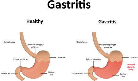 acid reflux: Gastritis Illustration