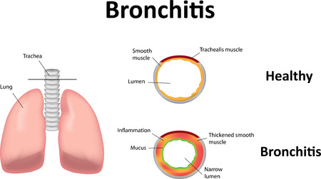 emphysema: Bronchitis Illustration
