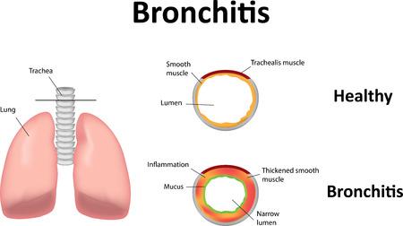 bronchitis: Bronchitis Illustration