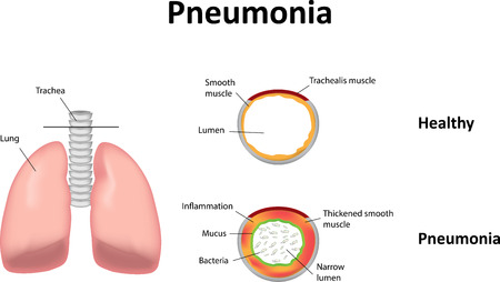 respiratory tract: Pneumonia Illustration