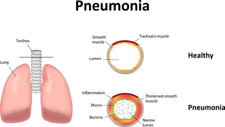 viral infection: Pneumonia Illustration