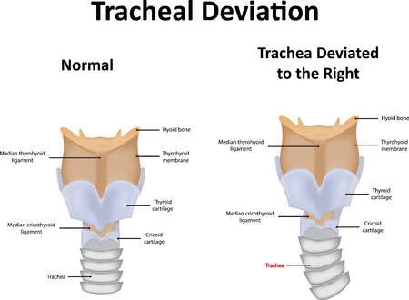 effusion: Tracheal Deviation Illustration