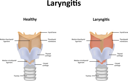 sore throat: Laryngitis Illustration