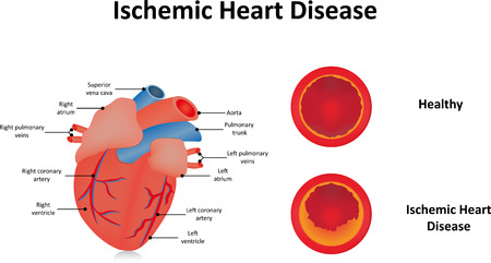sudden death: Ischemic Heart Disease Stock Photo