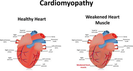 myopathy: Cardiomyopathy