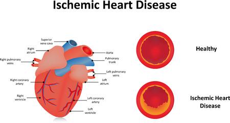 angina: Ischemic Heart Disease Illustration