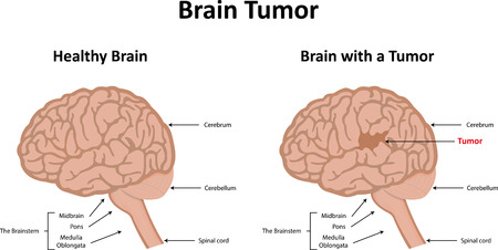 malignant cells: Brain Tumor