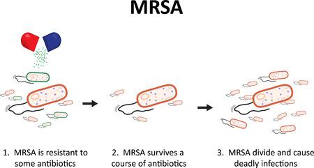 bacteria antibiotic: MRSA