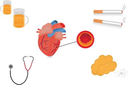 salud publica: Factores de riesgo de la enfermedad cardíaca