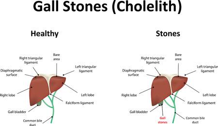 common bile duct: Gall Stones Illustration Illustration