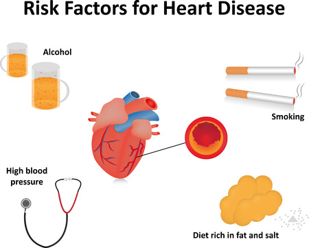 heart disease: Heart Disease Risk Factors with Labels Illustration